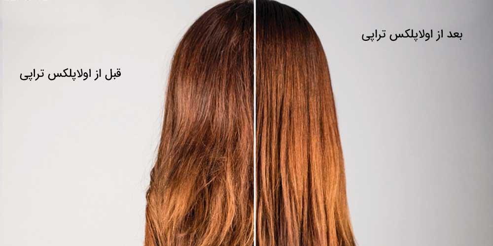 تفاوت استفاده کردن و استفاده نکردن از اولاپلکس تراپی مو