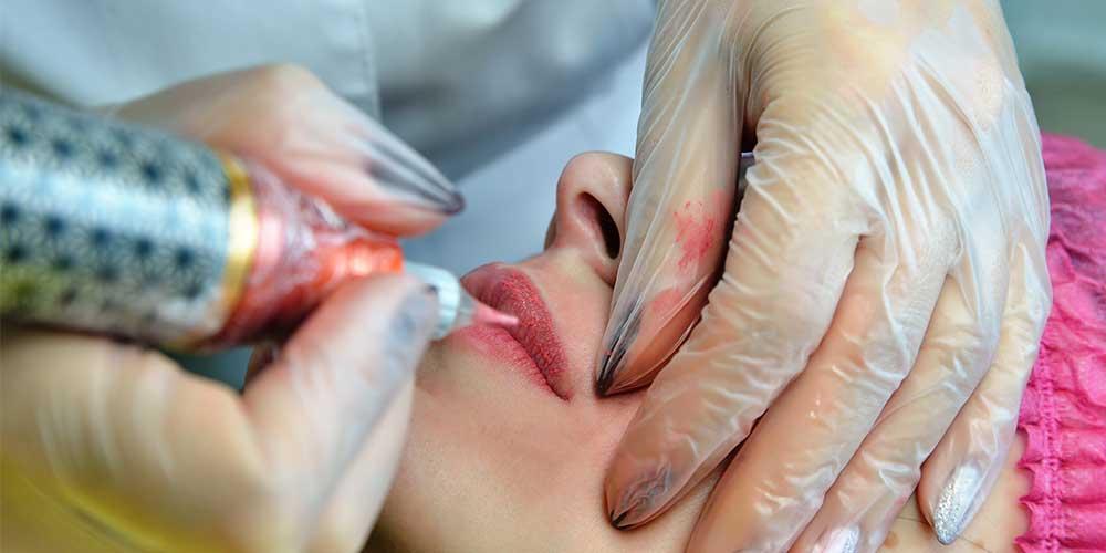 کمترین درد در میکروپیکمنتیشن