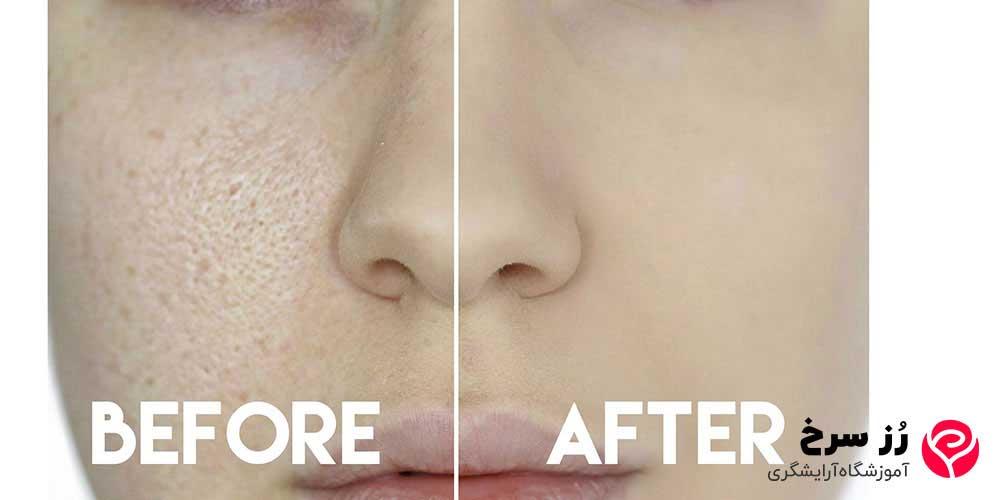خواص پرایمر در از بین بردن منافذ باز پوست صورت