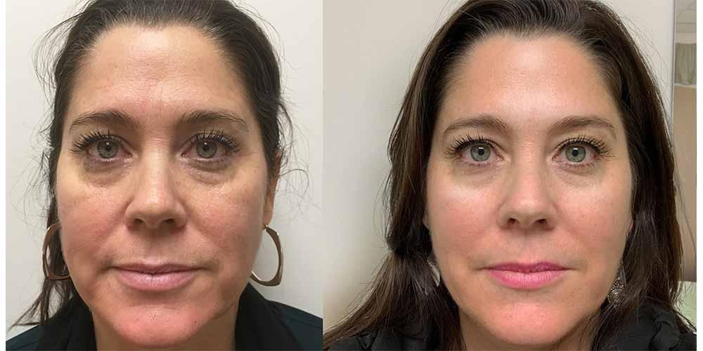 قبل و بعد فیشیال صورت