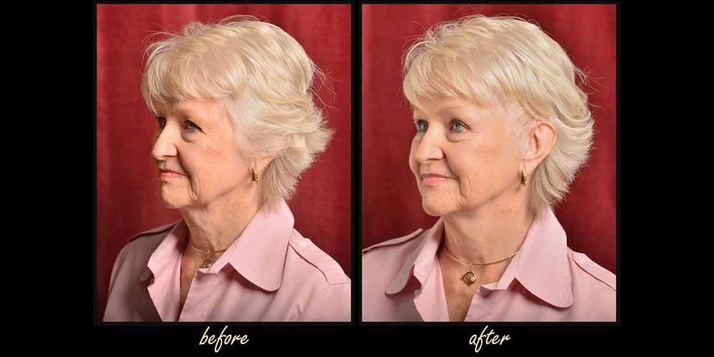 قبل و بعد کش لیفت ابرو