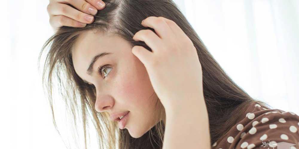 ریزش مو در زنان بعد از کرونا