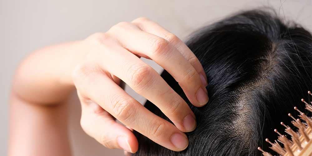 درمان ریزش مو بعد از کرونا