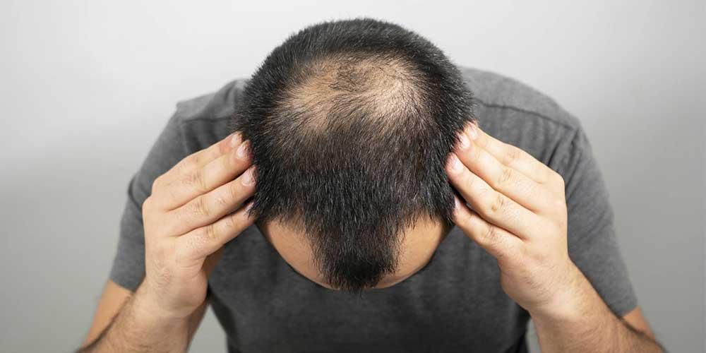 علت ریزش مو بعد از کرونا