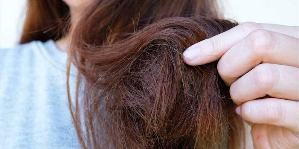 عوارض گلت مو