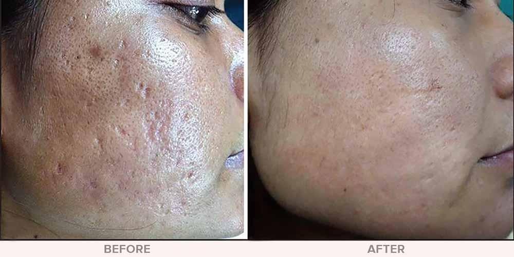 عکس قبل و بعد مزونیدلینگ صورت و اسکار