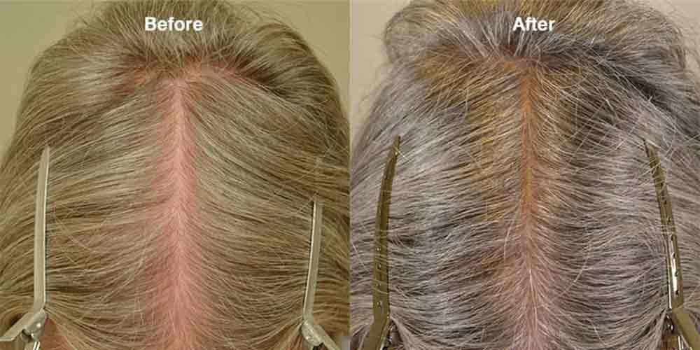 عکس قبل و بعد استفاده از ماینوکسیدیل برای خانم