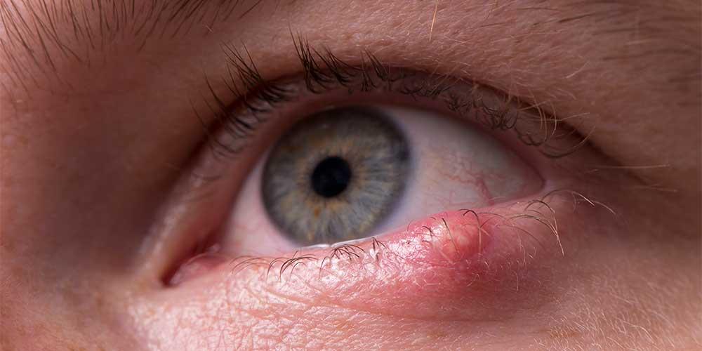 علت گل مژه و جوش چشم چیست