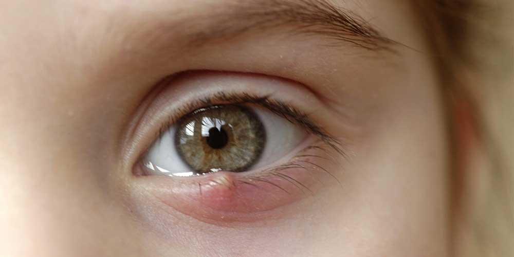 جوش داخل چشم کودک